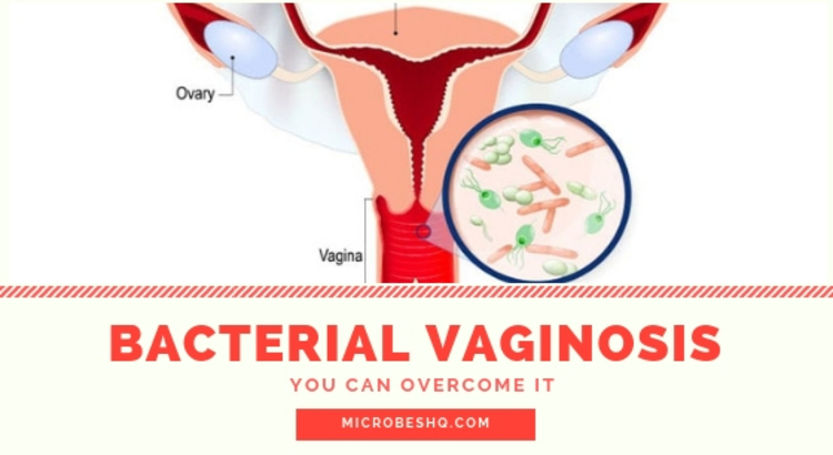 How To Treat Vaginosis Naturally